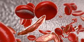 80048313 - Third Annual Sickle Cell Symposium Banner