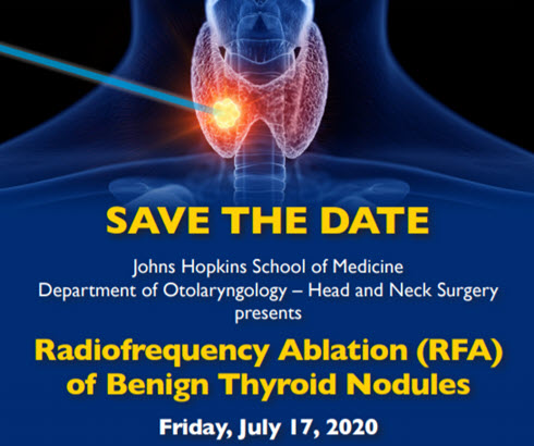Johns Hopkins University Radiofrequency Ablation (RFA) of Benign Thyroid Nodules Banner